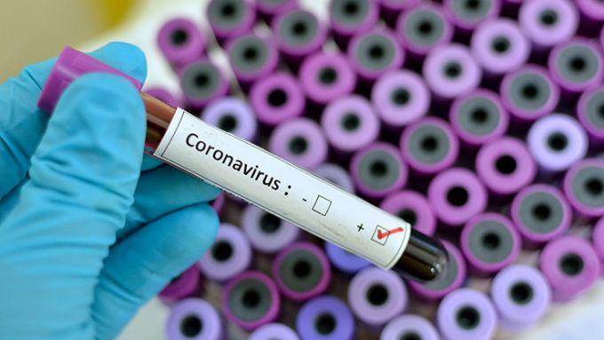 Coronavirus in laboratorio